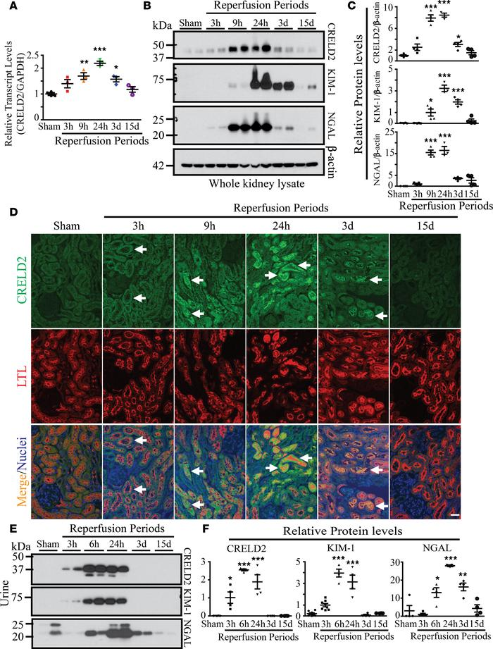 CRELD2 is induced and excreted in the urine in a mouse model of AKI caus...