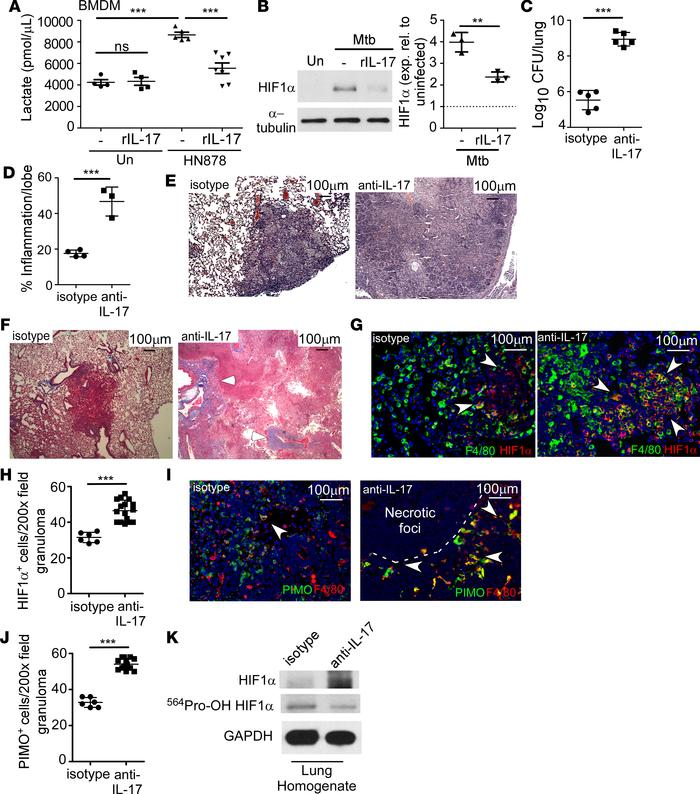 IL-17 limits HIF1α and the metabolic shift to glycolysis, protecting aga...