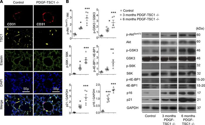 Effects of mTOR overactivation in PDGF-TSC1–/– mice. TSC1 deletion was i...