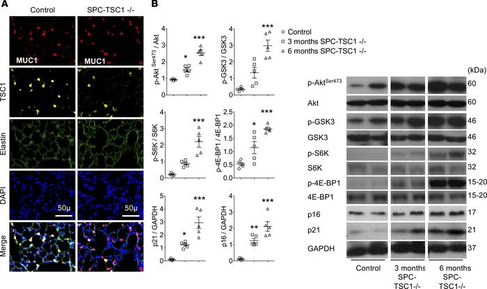 Effects of mTOR overactivation in SPC-TSC1–/– mice. TSC1 deletion was in...