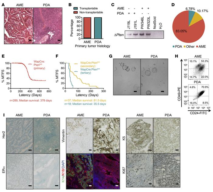 A small subgroup of pten-deficient mammary tumors is transplantable. (A)...