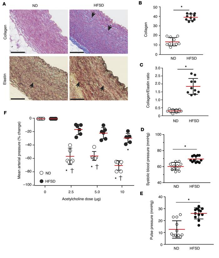 Vascular remodeling and endothelial dysfunction are increased in guinea ...