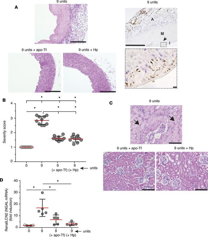 Systemic vascular and renal tissue injury following 9-unit stored red bl...