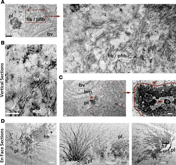 Ultrastructures of Aβ deposits in human AD retina. Transmission electron...
