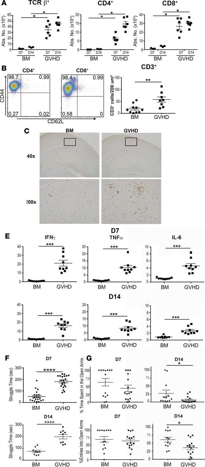 GVHD induces inflammation and behavioral alterations in the brain. (A) L...