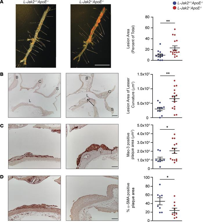 Accelerated atherosclerosis with hepatic Jak2–deficiency. ApoE-null mice...