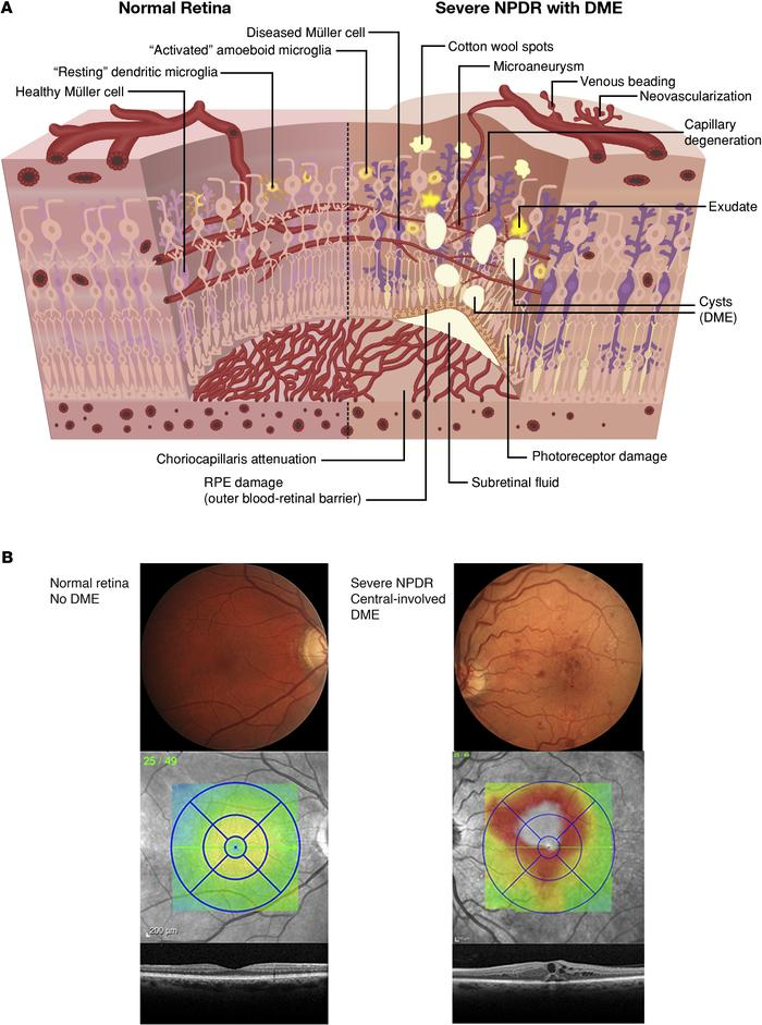 Pathological lesions of diabetic retinopathy. (A) An illustrated schemat...