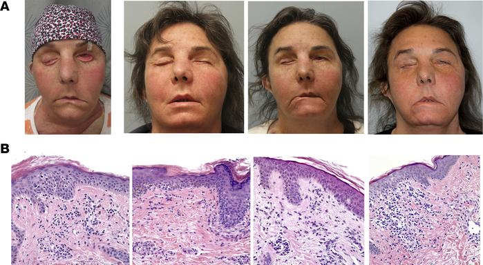 Clinical photographs and corresponding H&E stainings of facial allog...