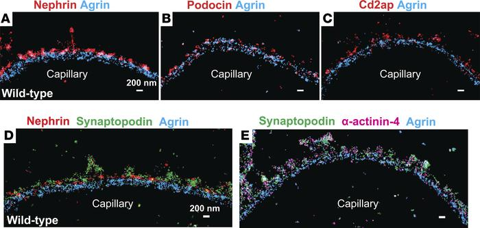 STORM imaging of slit diaphragm proteins. (A–C) Double-color STORM imagi...
