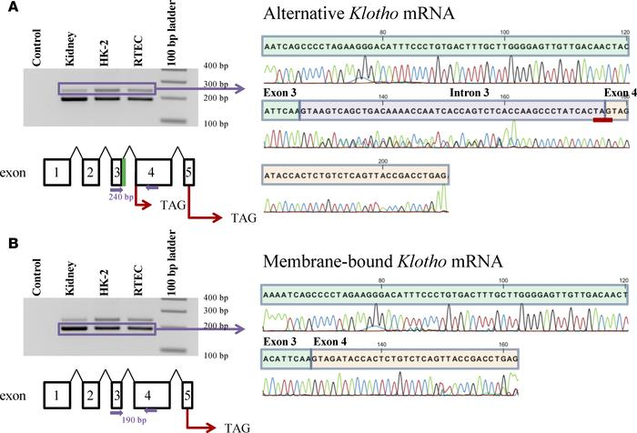 Identification of human Klotho mRNA transcripts by RT-PCR and DNA sequen...