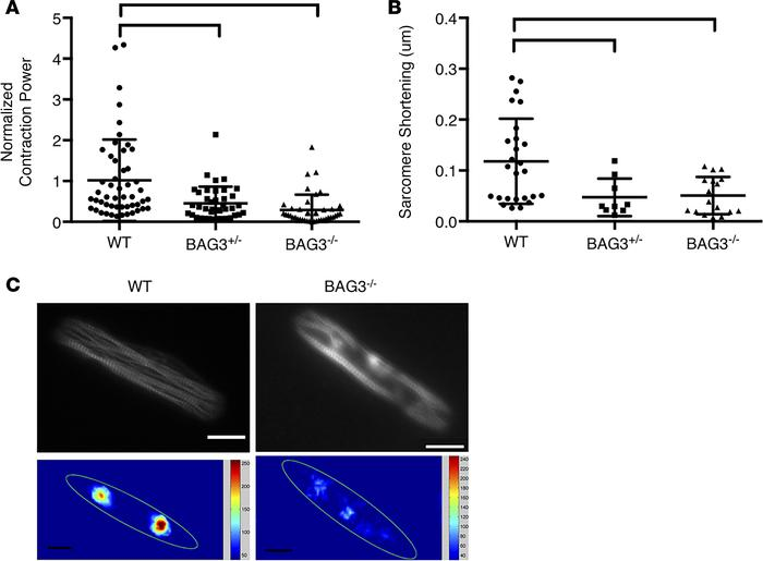 BAG3 mutations produce contractile deficits in iPS-CMs cultured on micro...
