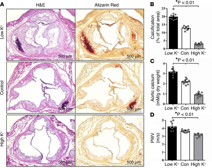Dietary potassium regulated vascular calcification and aortic stiffness ...