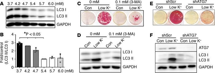 Low potassium promoted VSMC calcification through autophagy. (A) Effects...
