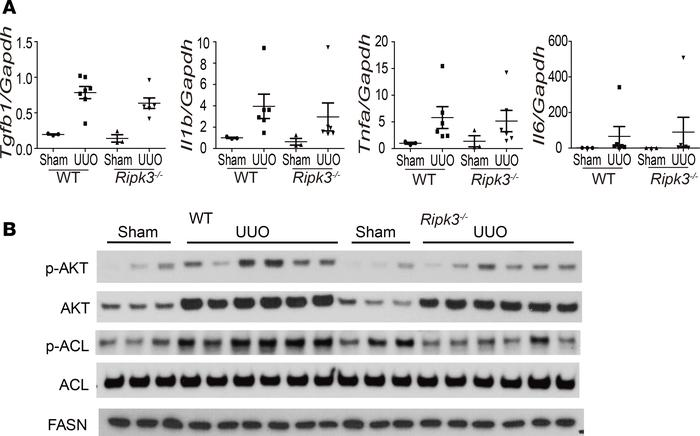 RIPK3 regulates AKT and ACL. WT and Ripk3–/– mice were subjected to UUO ...