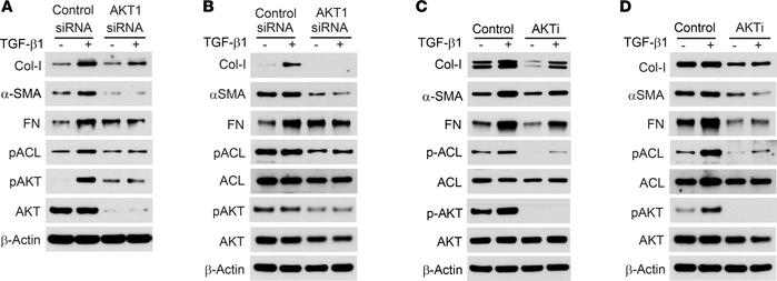 Inhibition of AKT suppresses TGF-β1–induced ECM production in fibroblast...