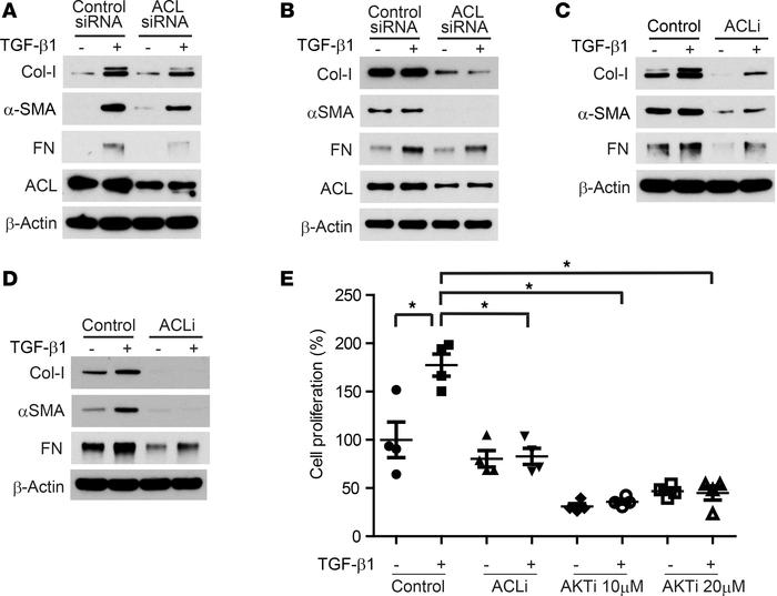 Inhibition of ACL suppresses TGF-β1–induced ECM production in fibroblast...
