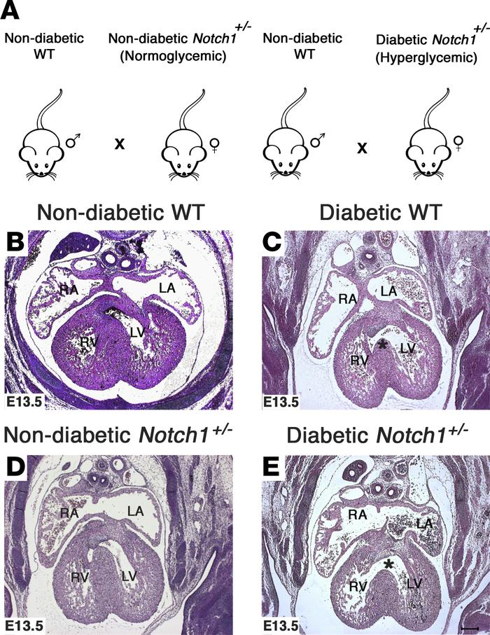Exposure to maternal diabetes and Notch1 haploinsufficiency leads to inc...