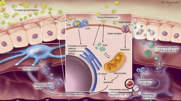 Pathogenic processes in alcoholic liver disease. Ethanol leads to increa...