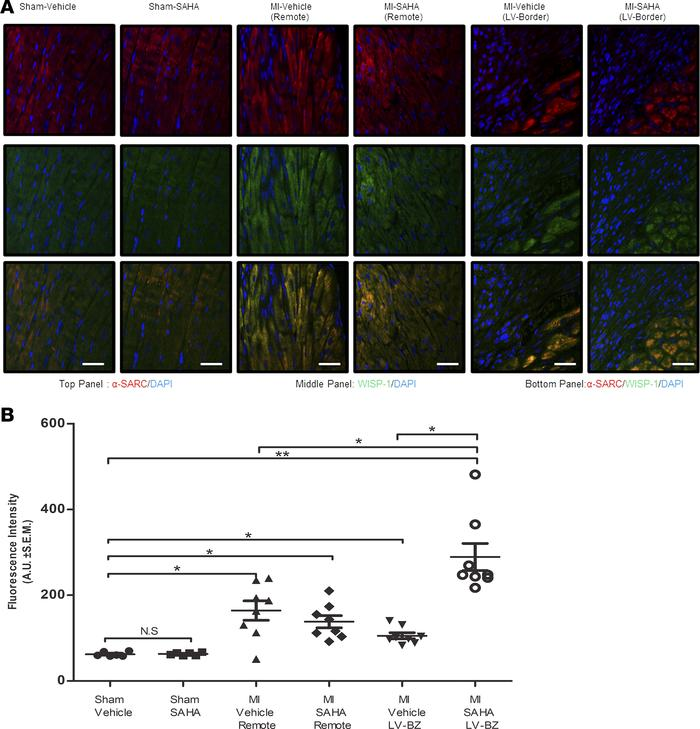 Wisp-1 is upregulated in response to MI injury and HDAC inhibition at th...