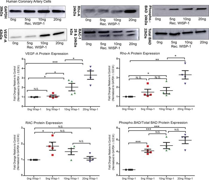 WISP-1 enhances proangiogenic and prosurvival genotypes in human coronar...
