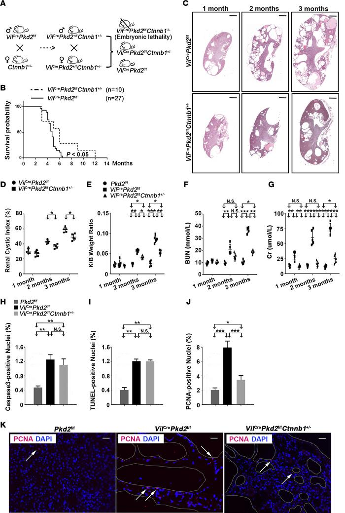 Ctnnb1 allelic reduction ameliorates ADPKD phenotypes in VilCrePkd2f/f ...