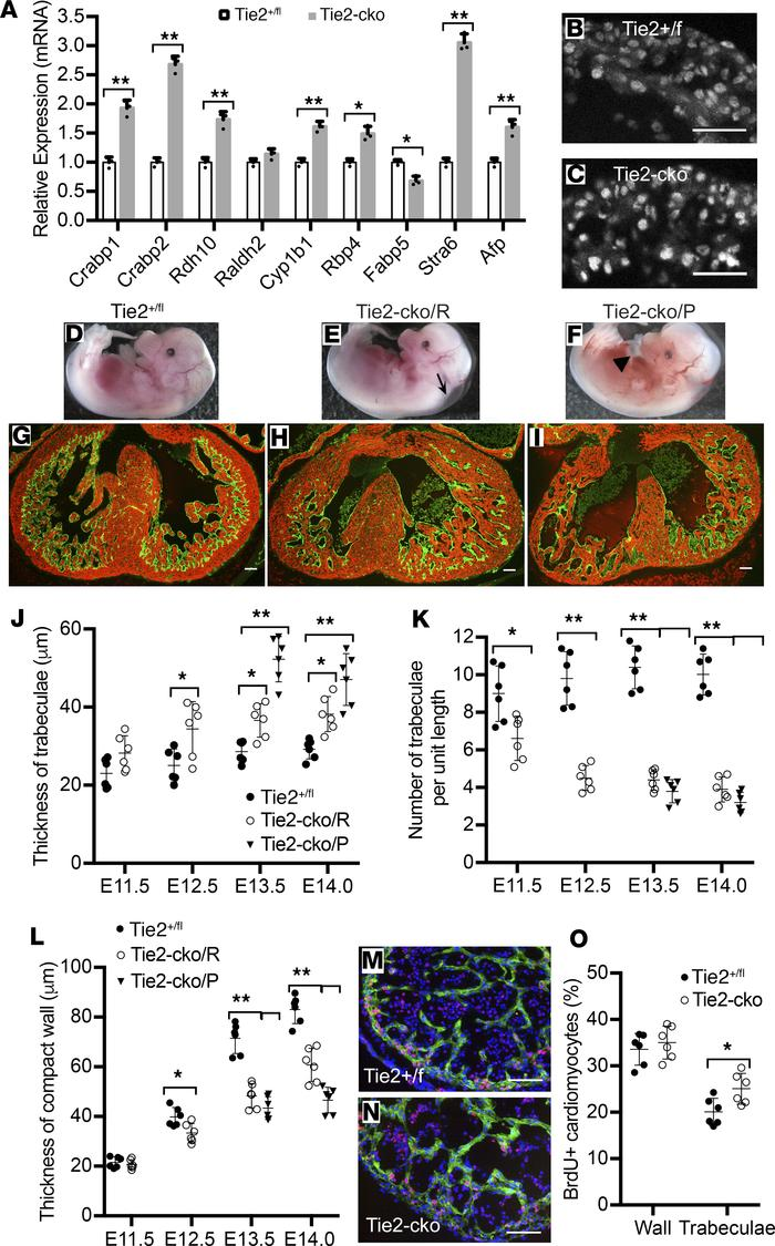 Myocardial phenotypes in Tie2-cko hearts were partially rescued by inhib...