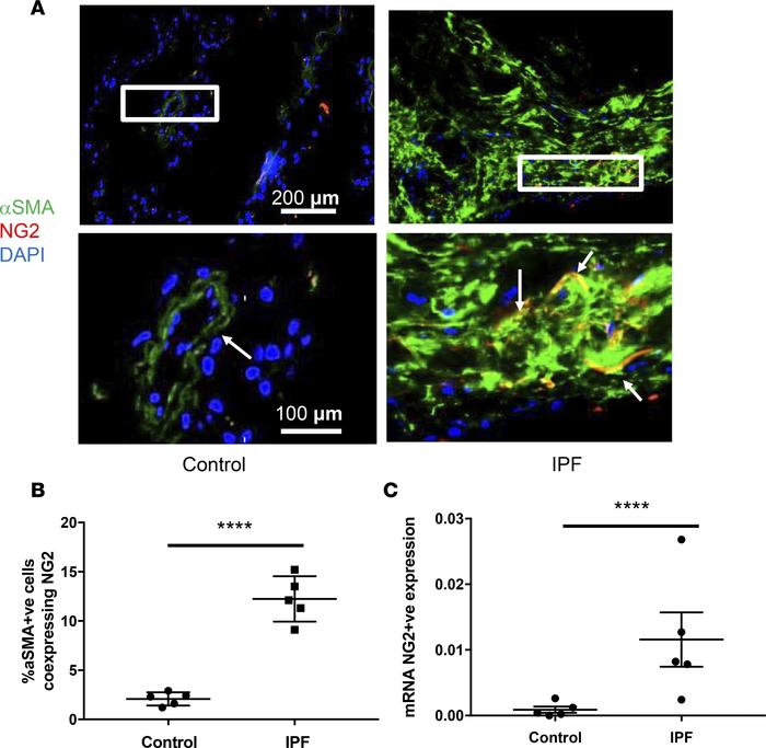 α-SMA+ pericyte (PC) expression accumulate in fibrotic foci of idiopathi...