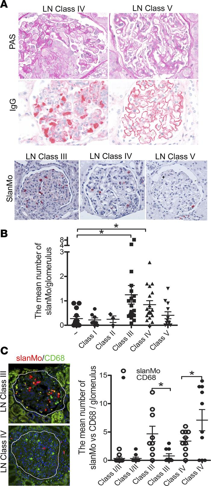 Preferential glomerular accumulation of slanMo in type III and IV lupus ...