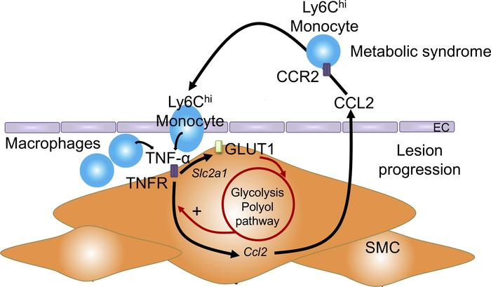 Mechanistic model. The metabolic syndrome phenotype results in monocytos...