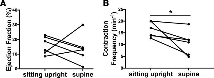 Mice in the supine position demonstrated lower lymphatic contraction fre...
