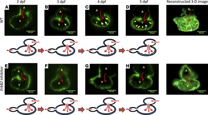 ErbB2-dependent trabeculation during cardiac morphogenesis. (A) In WT z...