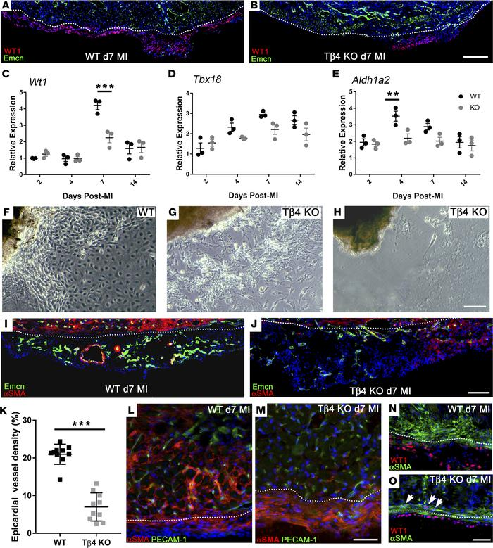 Thymosin β4 is required for epicardial activation, epithelial-to-mesench...