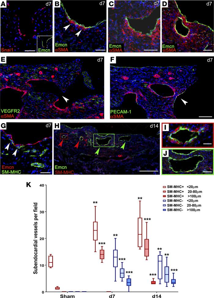 Endocardial remodeling contributes new subendocardial vessels. Detection...