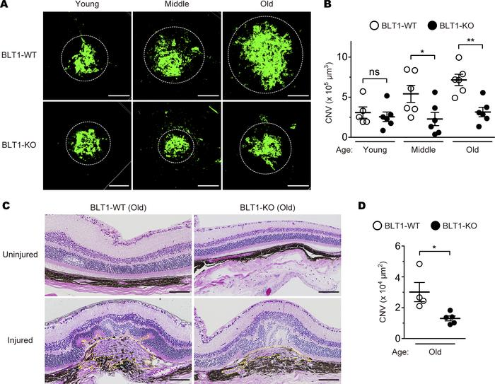 BLT1 deficiency attenuates CNV in a mouse model of AMD. Images of isolec...