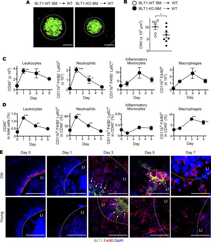 BLT1-expressing macrophages are recruited to the periphery of laser-indu...