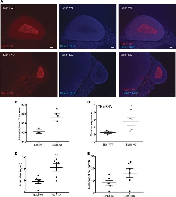 Enlarged medulla and increased adrenaline in plasma of Siah1a–/– mice. (...