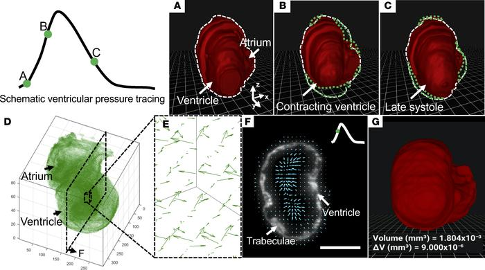 4D perception of the contracting heart in a transgenic Tg(cmlc2:gfp) zeb...