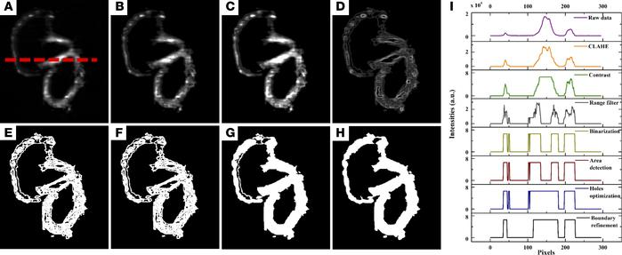 BINS algorithm. (A) Raw data of an embryonic zebrafish heart at 5 dpf. (...