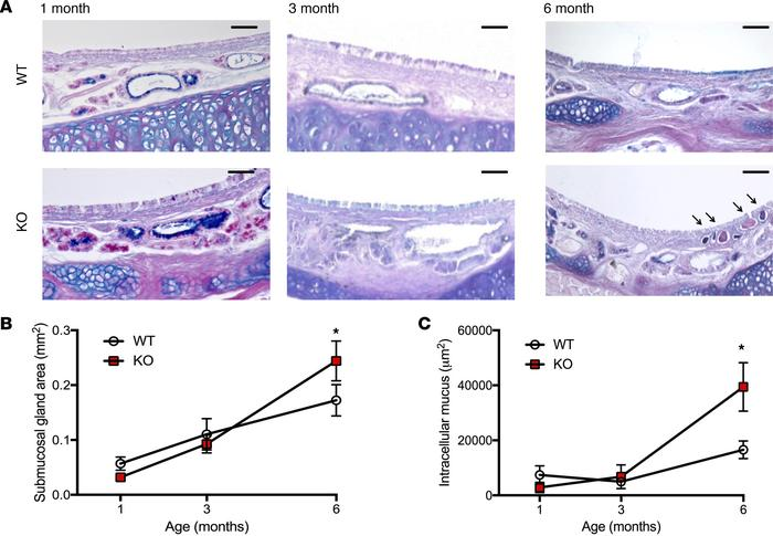 Tracheal gland development. (A) Representative images of Alcian blue–per...