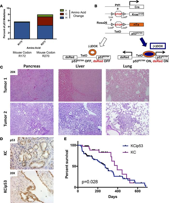 KCip53 mice recapitulate the stages of human pancreatic cancer. (A) Perc...