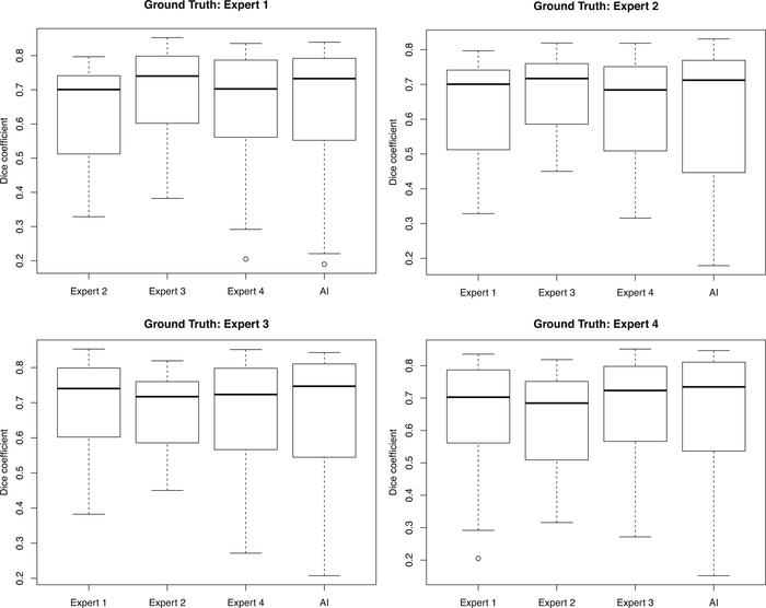 Inter-rater reliability with 4 human expert segmentations compared with ...