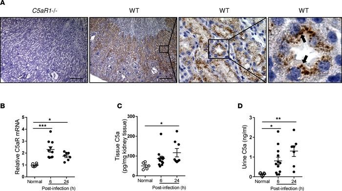 Detection of C5a and C5aR1 in urinary tract. (A) C5aR1 expression in WT ...