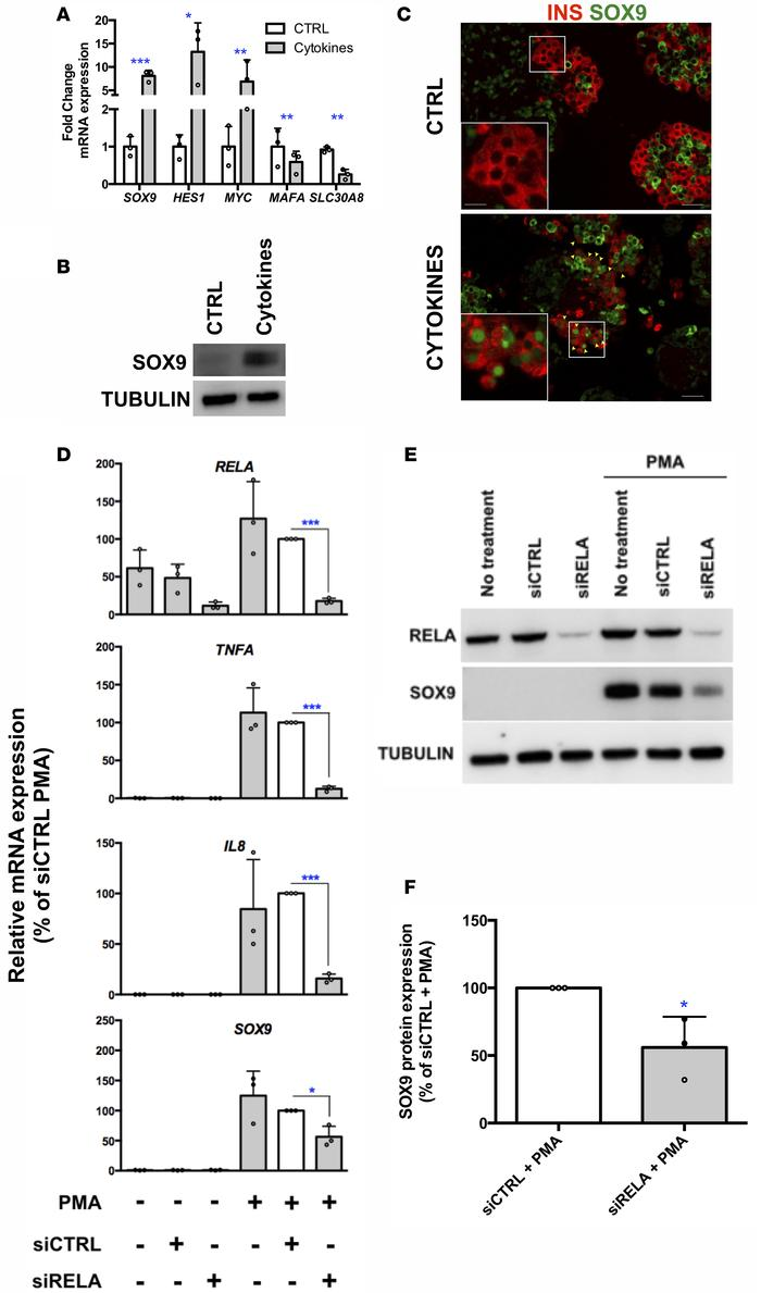 Potent NF-κB activators induce SOX9 expression in human β cells. (A and ...