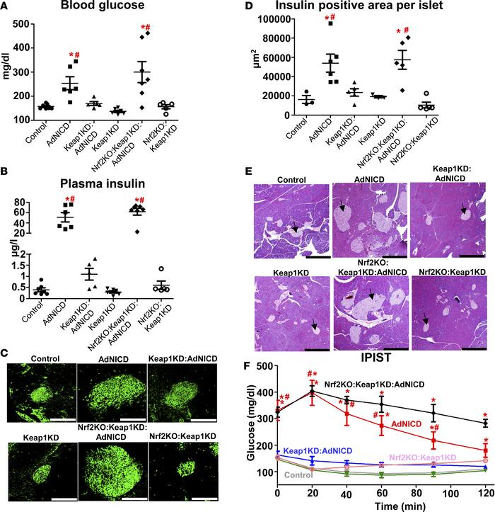 Nrf2 pathway activation protects AdNICD mice from insulin resistance. (A...