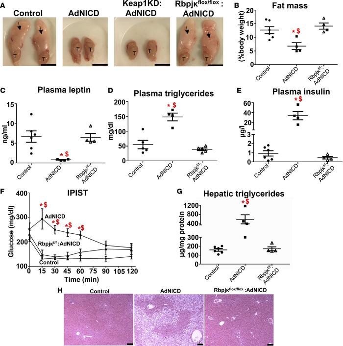 Adipocyte-specific Rbpjκ deletion in AdNICD mice restores adipose tissue...