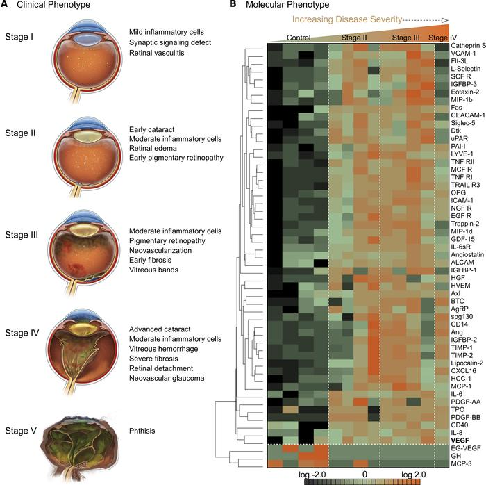 Vitreous proteomics identifies a unique cytokine signature associated wi...