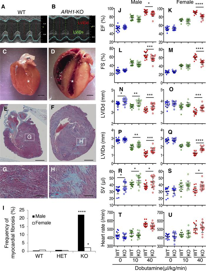 Impaired cardiac function with myocardial fibrosis in ARH1-KO mice. (A a...