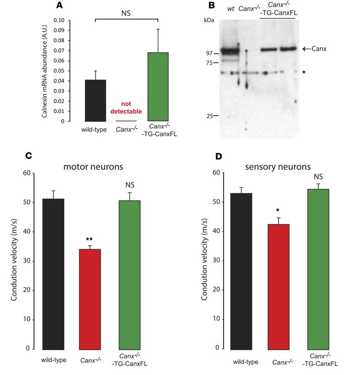 Transgenic Canx–/– mice expressing full-length calnexin protein. (A) Abu...