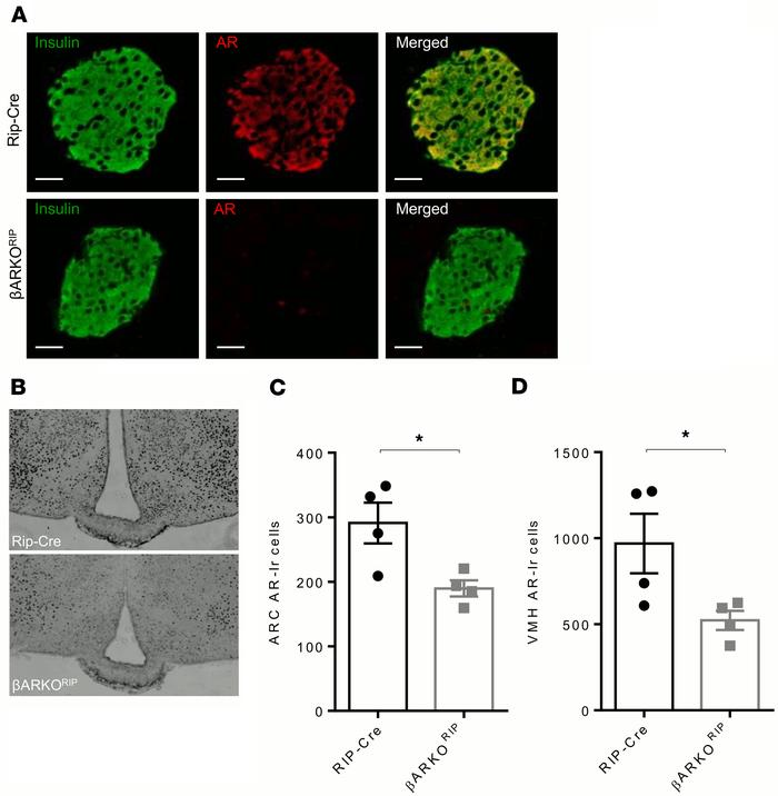 AR expression in pancreatic β cells and the hypothalamus of βARKORIP fem...