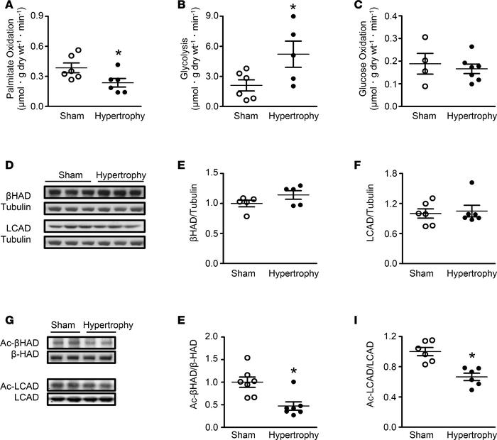 acetylation and fatty acid β-oxidation in neonatal rabbit hearts with hy